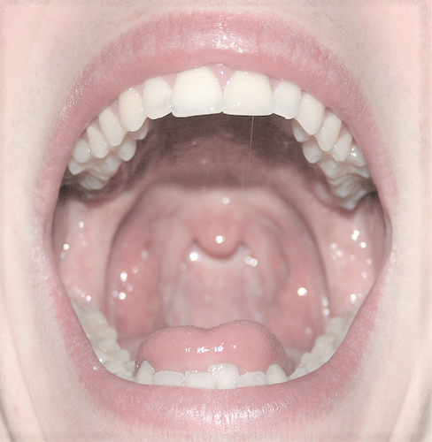 photo of a healthy oral cavity